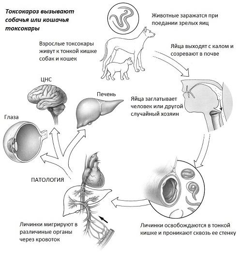 Токсокароз - болезнь из песочницы