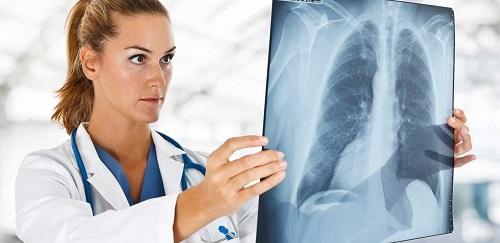 Как заражаются туберкулезом и чем он опасен для окружающих?
