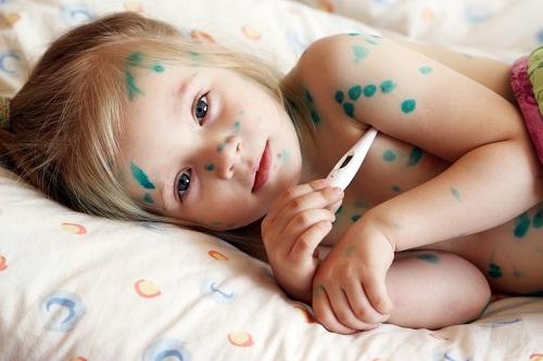 Как проявляется ветряная оспа у детей: осложнения и профилактика