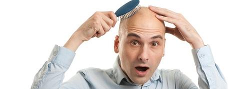 Причины алопеции и как остановить выпадение волос у мужчин