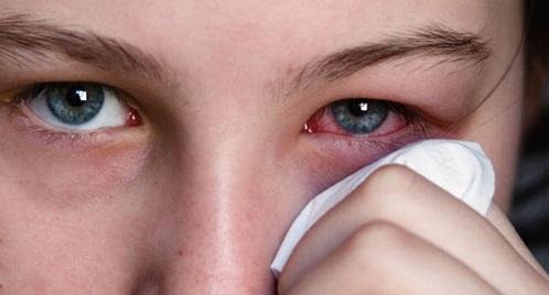 Причины и как вылечить вирусный конъюнктивит