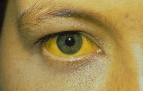 ZHeltye sklery glaz pri povyshennom bilirubine