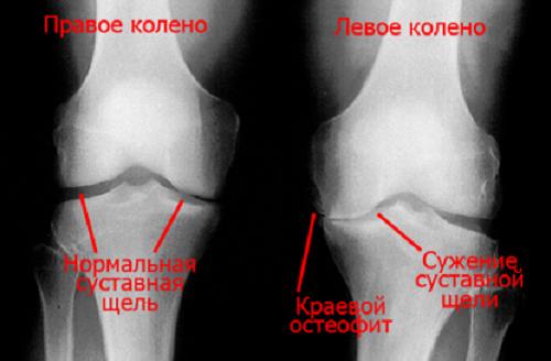 Osteofity v kolennom sustave
