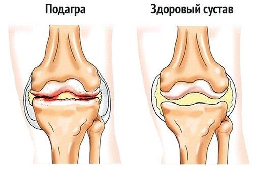 Zdorovyj i bol'noj sustav pri podagre