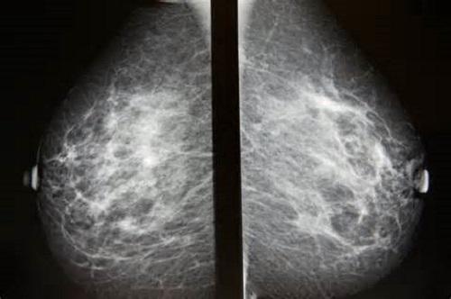 Cnimok molochnoj zhelezy na mammografe