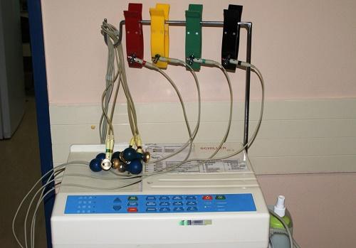 Sovremennyj ehlektrokardiograf