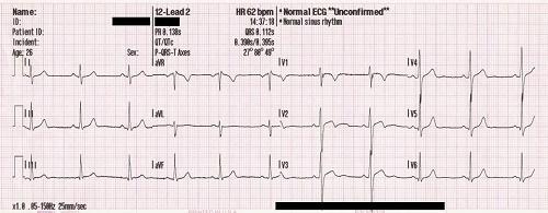 kardiogramma serdca v norme
