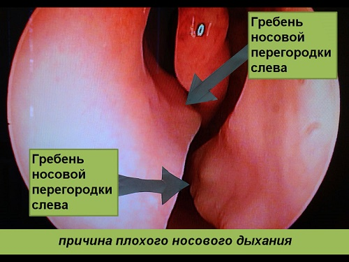 greben-nosovoi