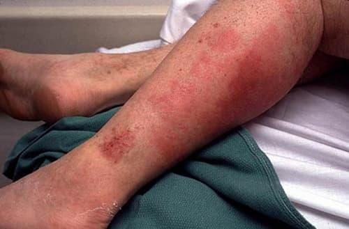 rozhistoe vospalenie na nogah