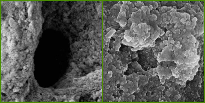 Dentinnye kanal'cy pod ehlektronnym mikroskopom