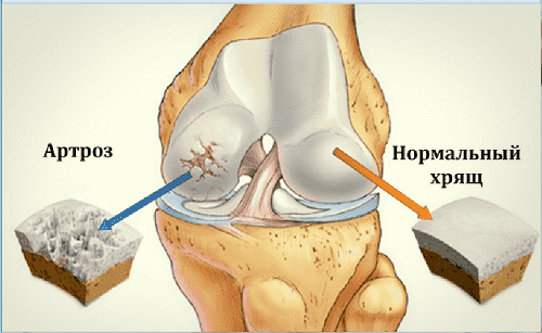 normal'nyj i povrezhdennyj hryashch pri artroze