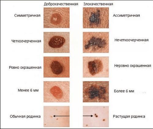 nachal'nye priznaki melanomy