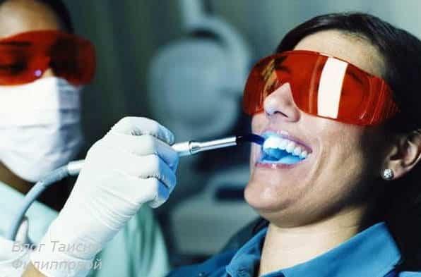 Belosnezhnye i krasivye zuby