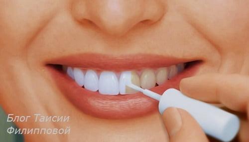 Otbelivanie zubov - kakoe samoe bezopasnoe i ehffektivnoe?