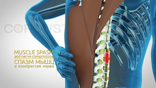 Autogravitacionnaya terapiya