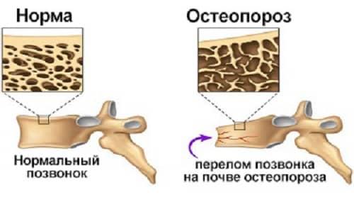 Izmenenie kostnoj tkani pri osteoporoze