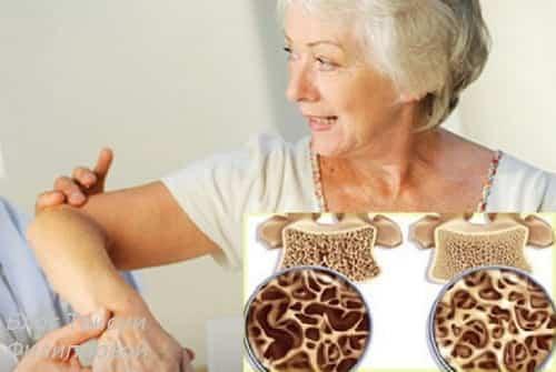 Osteoporoz u zhenshchin posle 50 let