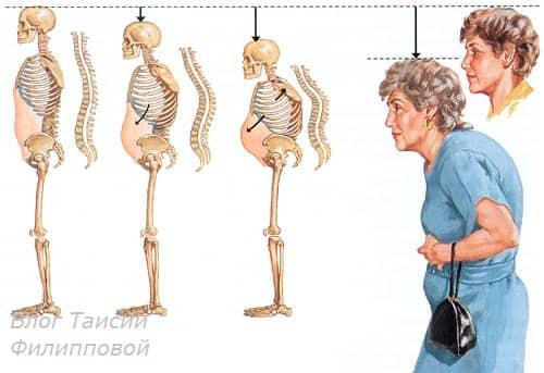 Narushenie osanki u zhenshchin pri osteoporoze