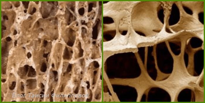 Normal'naya kostnaya tkan' i osteoporoz