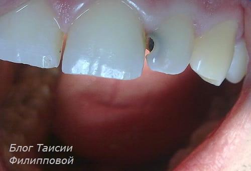 Simptom pul'pita - zubnaya bol'