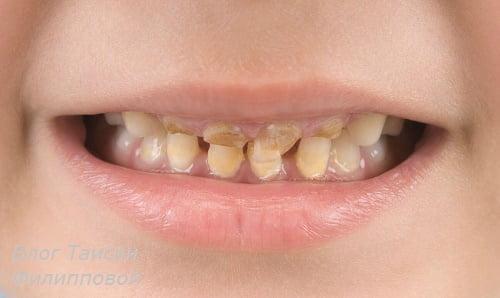 Karies molochnyh zubov u detej – foto