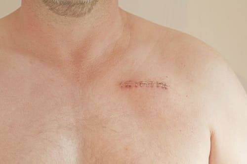 SHov posle implantacii kardiostimulyatora
