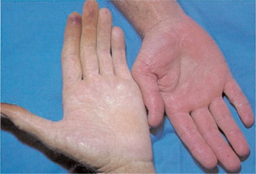 Simptomy nizkogo gemoglobina