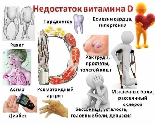 Deficit vitamina D - simptomy
